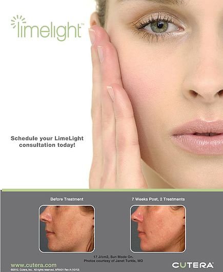 Photofacial-IPL Lexington Kentucky